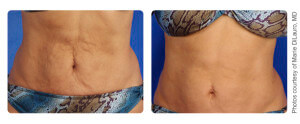 Skin Tightening Photo