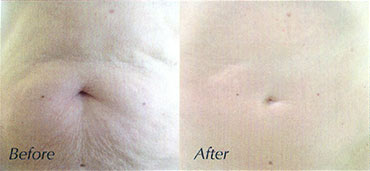 Rejuvapen Body Area Reduction