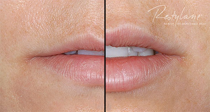 restylane-silk-before-and-after-01