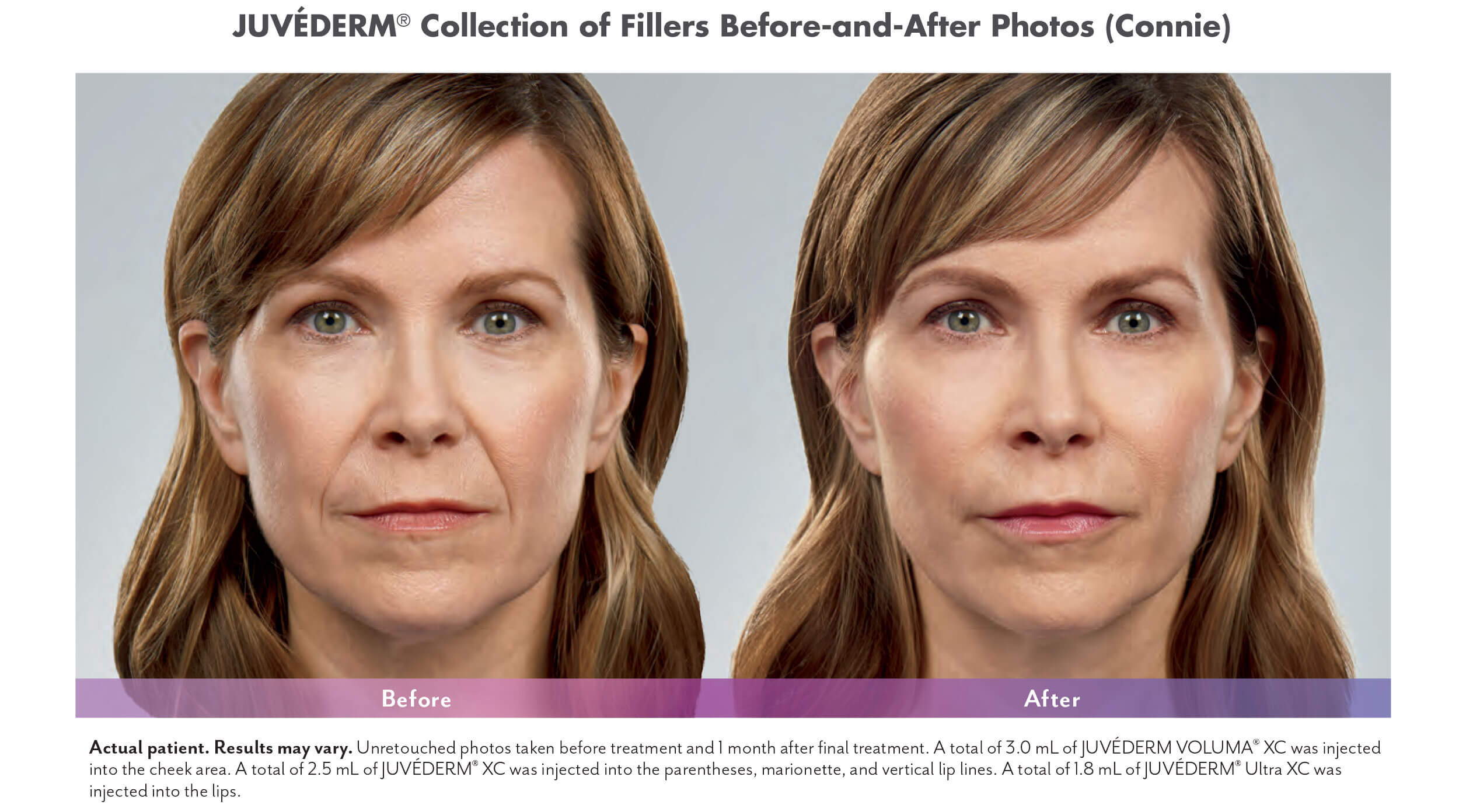 Juvederm XC - Snooty Anti-Aging & Wellness