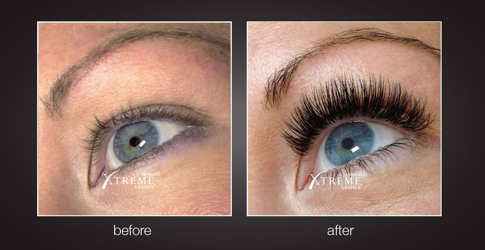 Xtreme Lashes Snooty Anti Aging Wellness