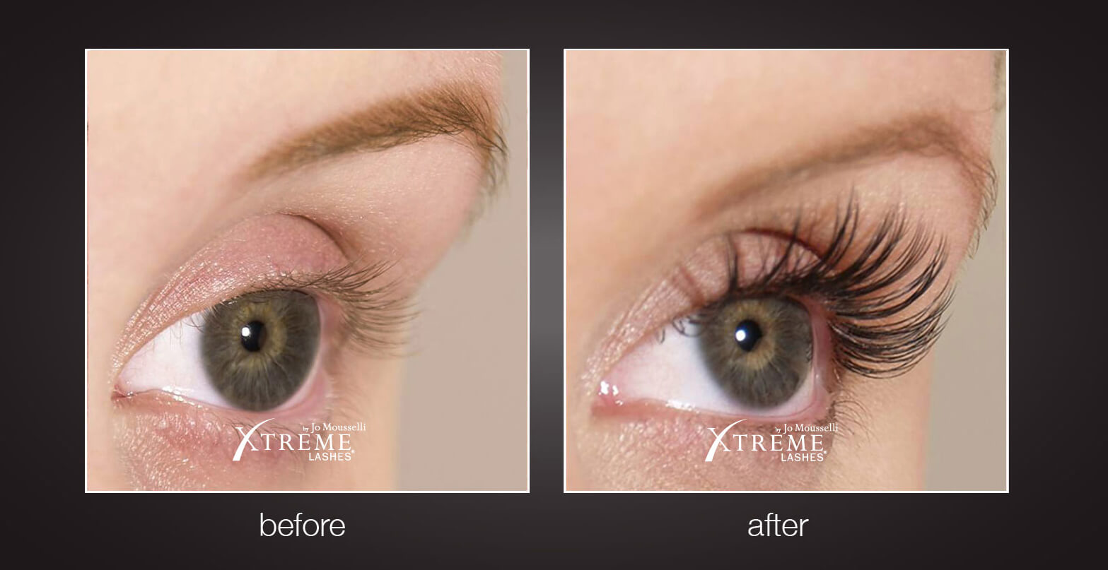 d3ba5bb04b9 Xtreme Lashes® - Snooty Anti-Aging & Wellness